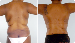 Liposuction Before and After Pictures Baltimore, MD