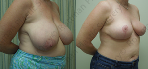 Plastic Surgery Before and After Pictures Baltimore, MD