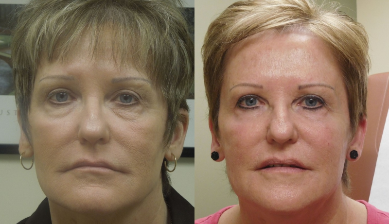 Injectables And Dermal Fillers Before & After Photos